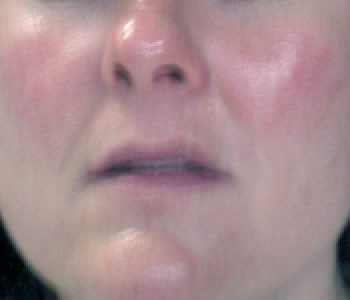 Rosacea And Acne Rosacea Treatments Lakeview Dermatology Board