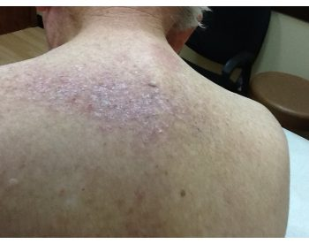 Psoriasis Uvb Light And Xtrac Laser Treatments Treatments