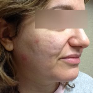 Fractional Laser Resurfacing Treatments - Chicago Lakeview