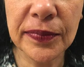 Radiesse® Treatments - Chicago Lakeview Dermatology - Board